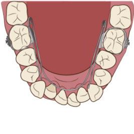 舌側弧線装置