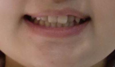 上の前歯が気になる(10代・女性)